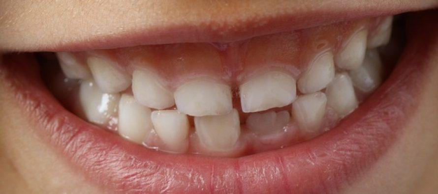 Higijena mlečnih zubića