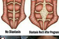 Šta je dijastaza?